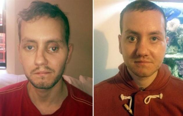 Βρετανοί γιατροί εκτύπωσαν νέο πρόσωπο σε ασθενή