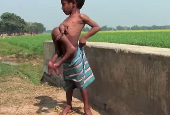 Ντίπακ: Το παιδί με τα 4 χέρια και 4 πόδια (βίντεο)