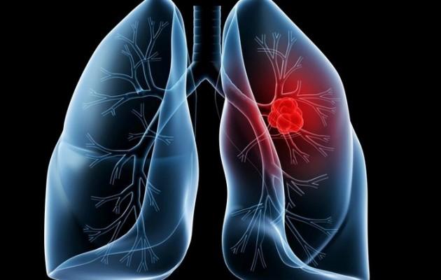 """Συσκευή """"μυρίζει"""" το καρκίνο του πνεύμονα"""