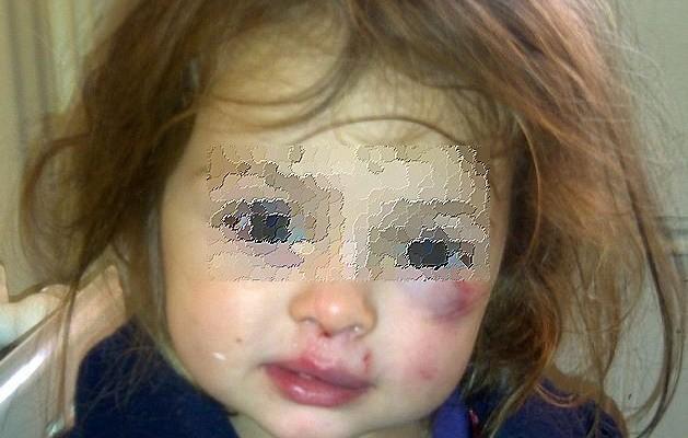 Συγκλονιστικές αποκαλύψεις για τους γονείς – τέρατα που κακοποιούσαν βρέφος