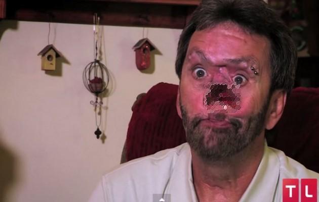 Βίντεο με τον άνθρωπο που έχει μια τρύπα στο… πρόσωπο