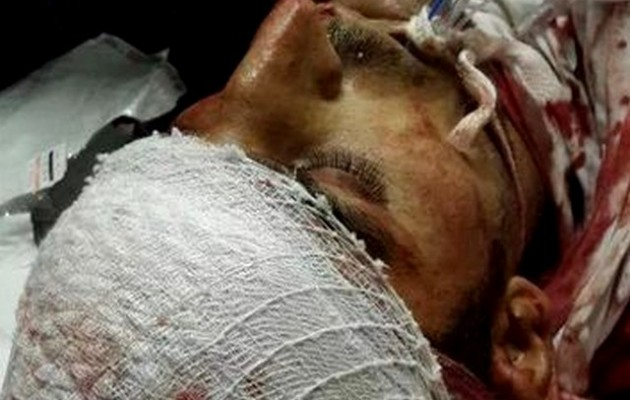 Λουτρό αίματος στο Γκαζιαντέπ – Βίντεο και  φωτογραφίες ΣΟΚ