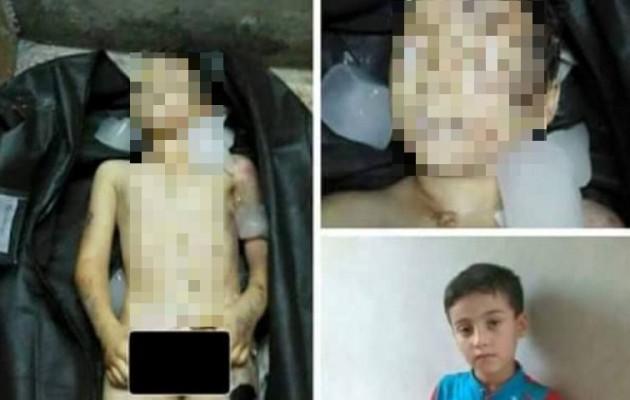 ΣΟΚ! Τούρκοι έκλεψαν τα όργανα από προσφυγόπουλο και το πέταξαν στα σκουπίδια