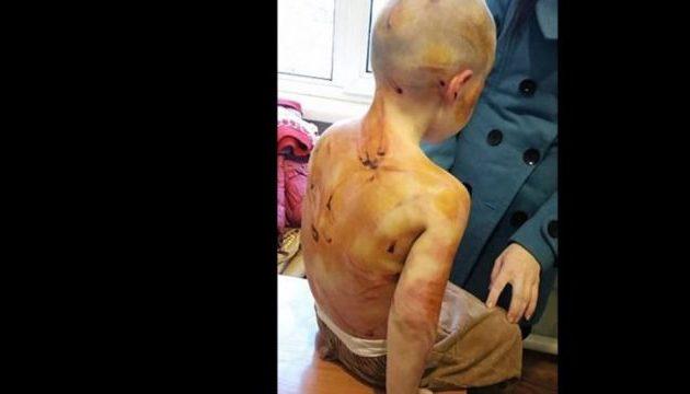 Αδιανόητο: Μαστίγωσαν 4χρονο Ρωσάκι γιατί δεν ήξερε να μετράει μέχρι το πέντε (φωτο)