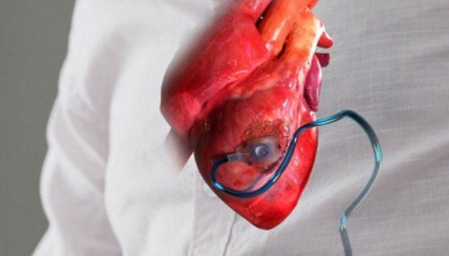 Συσκευή εμφυτεύεται στην καρδιά και την προστατεύει μετά από έμφραγμα