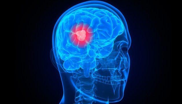 Άλμα προόδου για τον καρκίνο του εγκεφάλου – Τι ανακάλυψαν Έλληνες γιατροί