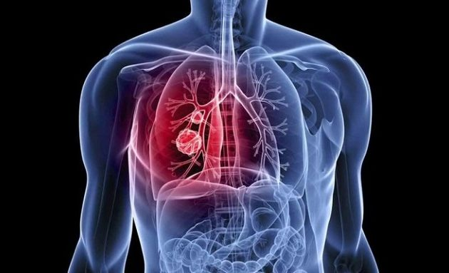 Tι ανακάλυψαν Βρετανοί επιστήμονες για τον καρκίνο του πνεύμονα