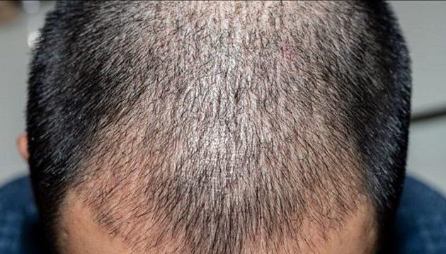 Ινδός επιχειρηματίας πέθανε μετά από μεταμόσχευση μαλλιών