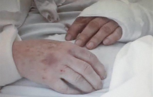 84χρονη ξυλοκοπήθηκε άγρια επί ώρες στο Παγκράτι μέχρι να τη ληστέψουν
