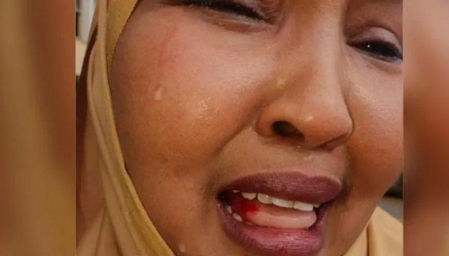 Κενυάτης βουλευτής συνελήφθη γιατί χαστούκισε γυναίκα συνάδελφο του