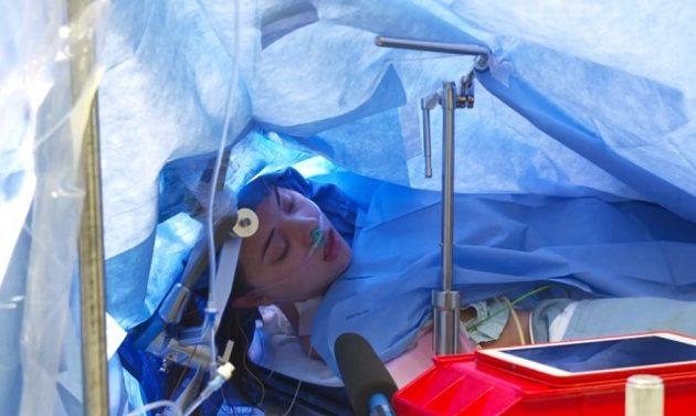 Πρωτοφανές: Γιατροί έκαναν εγχείρηση εγκεφάλου σε ζωντανή μετάδοση μέσω Facebook