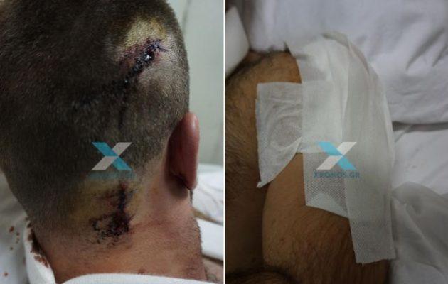 Μετανάστης μαχαίρωσε στον λαιμό αστυνομικό στη Ροδόπη (φωτο)