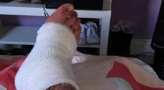 Τουρίστας πήγε με σαγιονάρες στο ηφαίστειο της Νισύρου και έπαθε εγκαύματα