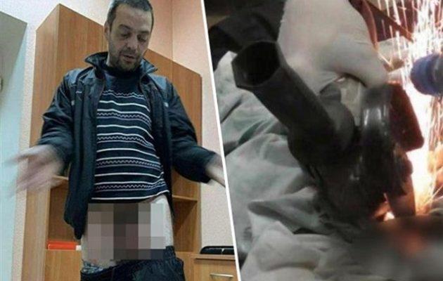 Απατημένη σύζυγος βίδωσε «παξιμάδι» στο πέος του άντρα της – Οι γιατροί το αφαίρεσαν με τροχό!
