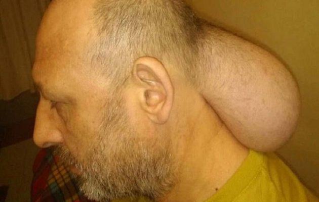 Κρατούμενος στις φυλακές Νιγρίτας με όγκο σε μέγεθος κεφαλιού