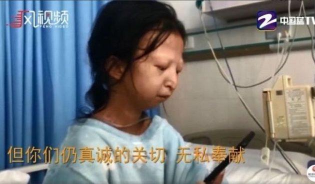 Κινέζα έτρωγε μόνο ρύζι για 5 χρόνια για να στηρίξει τον άρρωστο αδελφό της
