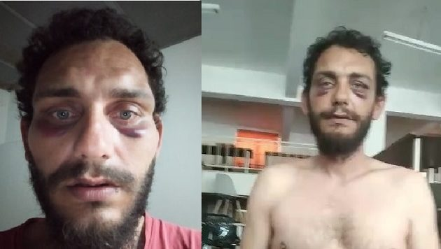 Καταγγελία: Αστυνομικοί πλάκωσαν στο ξύλο Κρητικό γιατί τον πέρασαν για Πακιστανό