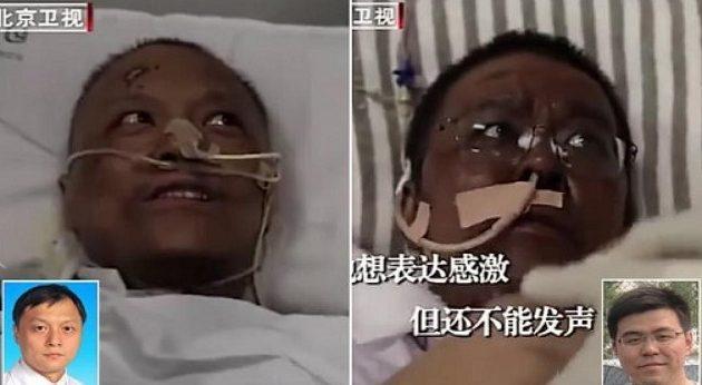 Πέθανε ο Κινέζος γιατρός που είχε μαυρίσει το δέρμα του από τον κορωνοϊό